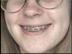 Teen, Teen braces, Braces, Cute teen, Amber, Brace